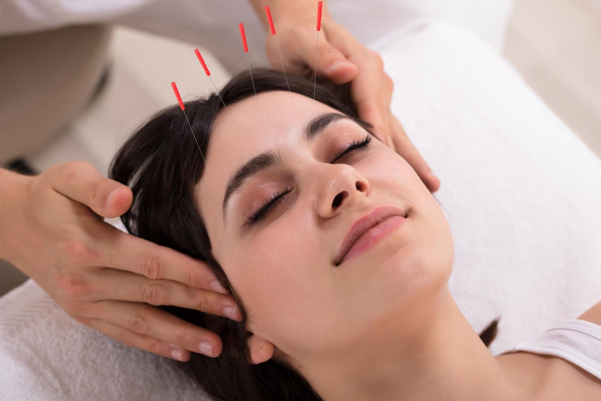 Acupuncture epilepsie