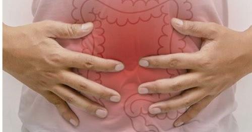 Remedios naturales para la colopatía funcional