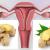 Trompes bouchées : 3 moyens naturels pour nettoyer l 'utérus