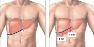 Hepatomegalie aliimentation