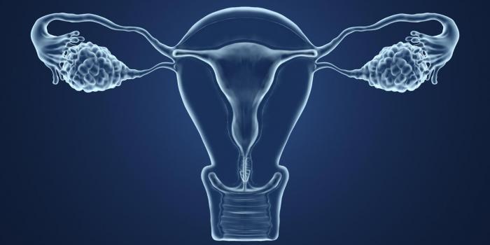 Kyste ovarien