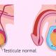 Comment soigner naturellement l'hydrocèle testiculaire?
